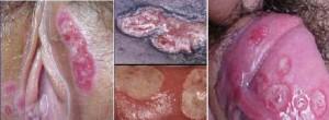 ضایعات پوستی آلت تناسلی - زخم غیر قرینه و دردناک شانکروئید