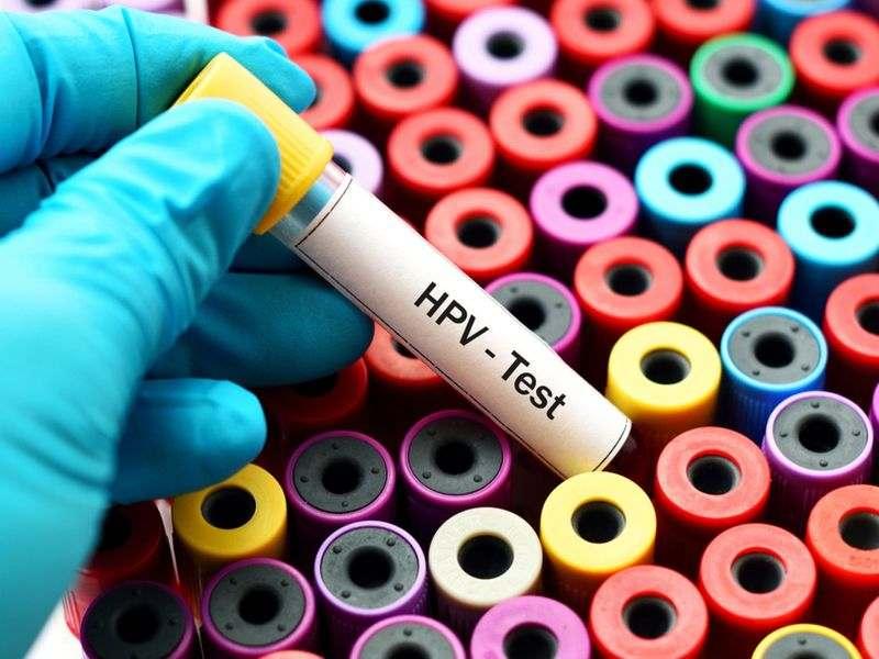 آزمایش hpv برای چیست
