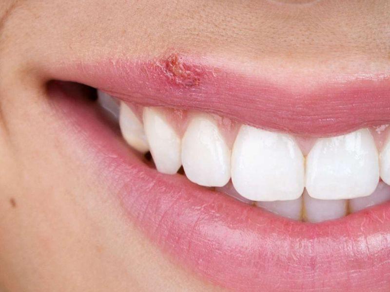 پیشگیری از زگیل تناسلی در دهان