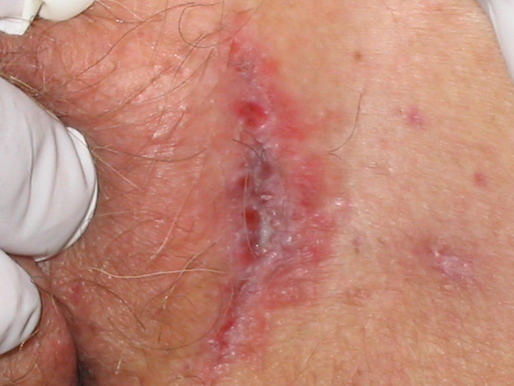 درمان ترک خوردگی واژن