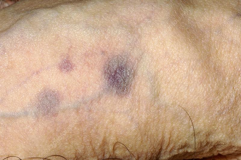 کبودی یا آسیب دیدگی آلت تناسلی در مردان
