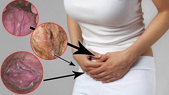 دلایل ایجاد پارگی و بریدگی واژن