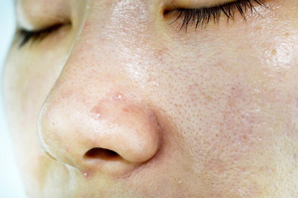 6 مزایای داشتن پوست چرب