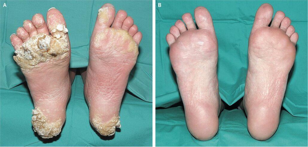 جراحی برداشتن زگیل کف پا